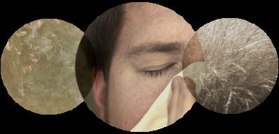 2-3-6-rhinite-allergique