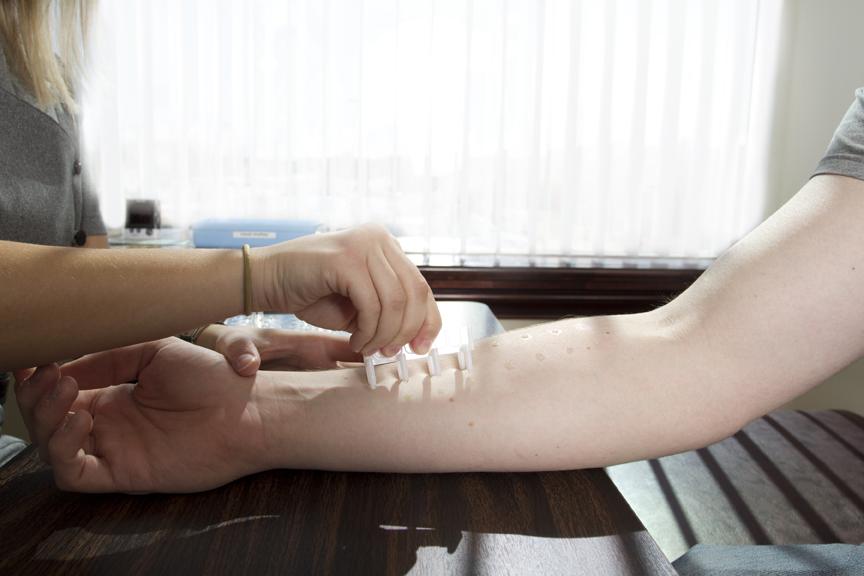 Les tests d'allergie, ça fait mal?